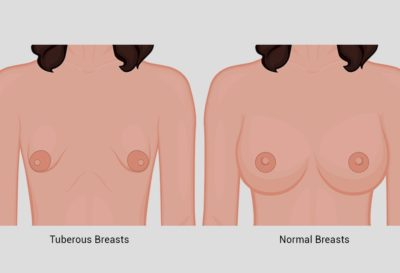 Illustration of Treatment For Patients With Breast Hypoplasia?