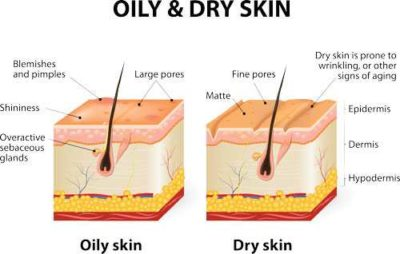 Illustration of Dry And Stiff Skin After Being Exposed To Chemical Fluids?