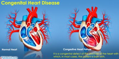 Illustration of Causes And Treatment Of Congenital Heart Disease?