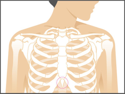 Illustration of Lump On The Inside Under The Sternum?
