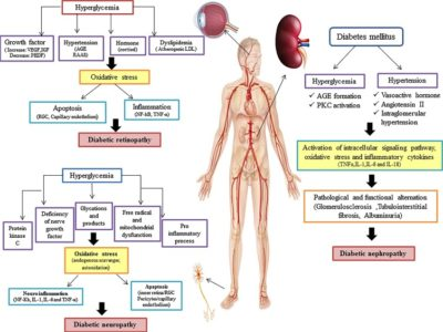 Illustration of Diabetes Is Accompanied By Complications?