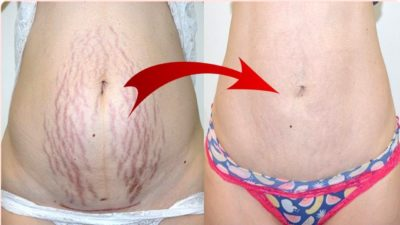 Illustration of How To Prevent Stretch Marks From Multiplying?