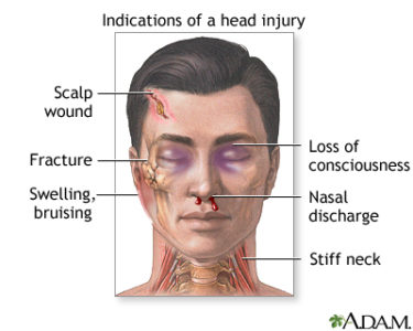 Illustration of How To Deal With Head Injuries?