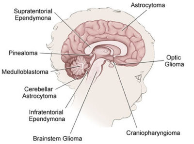 Illustration of How To Treat Brain Tumors Without Surgery In Teens?