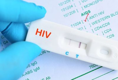 Illustration of HIV Test Results At Week 6 And Week 10?