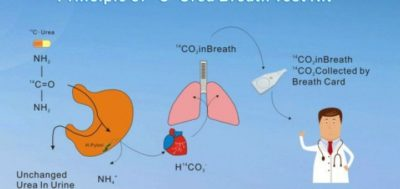Illustration of Difference Between Urea Breath Test And Ammonia Breath Test?
