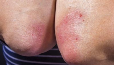 Illustration of Causes Of Itching That Is Increasingly Spreading?