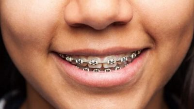 Illustration of How To Straighten Teeth In Addition To Braces?