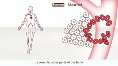 Illustration of Causes And Treatment Of Cancer?