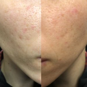 Illustration of Can Centella Asiatica Quickly Cure PIE Acne Scars?