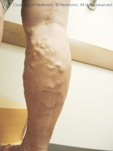 Illustration of Pain In The Legs During Exercise After Injection Of Varicose Veins?
