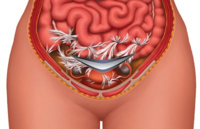 Illustration of Pain On The Inside Of A Caesarean Scar?