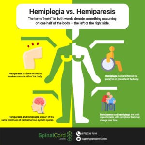 Illustration of Is Hemiparesis A Disability?