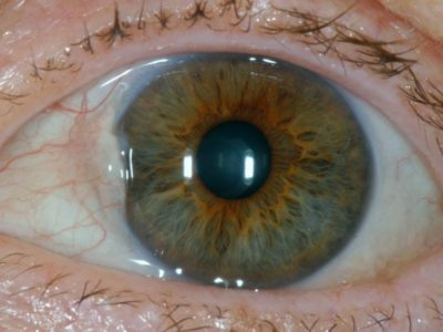 Illustration of Causes Of White Patches On The Cornea Of the Eye?