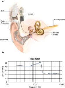Illustration of Greenish-yellow Discharge And Smells From The Ear And Disturbs Hearing?