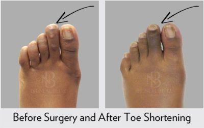 Illustration of How Long Is The Recovery In The Foot After A Cyst Surgery Baker?