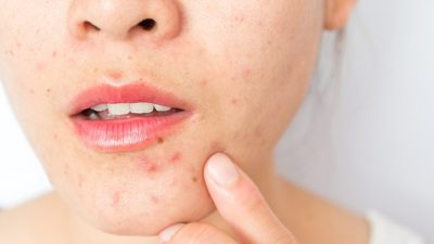Illustration of How To Deal With Dry Facial Skin And Pimples?