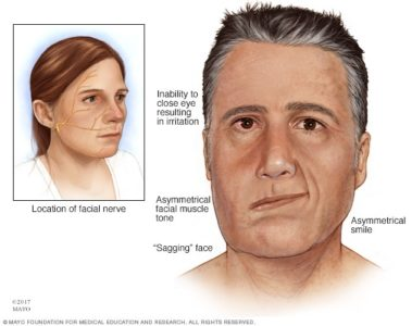 Illustration of Bell's Palsy?
