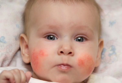 Illustration of Four-month-old Baby With Red Skin And Bumps?