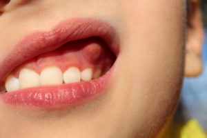 Illustration of Causes Of Lumps Appear In The Gums?