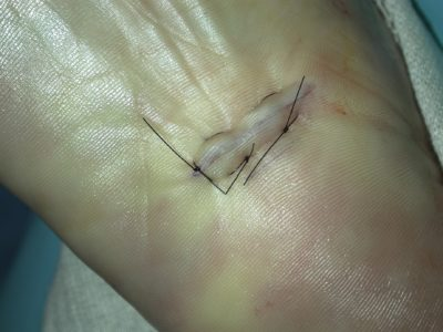 Illustration of Suture On The Instep?