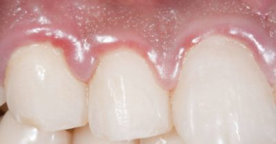 Illustration of The Cause Of Chronic Gum Inflammation Does Not Go Away?