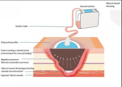 Illustration of Duration Of Therapy Using Negative Pressure Wound Care (NPWT)?