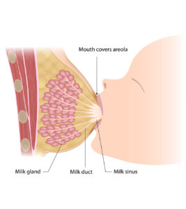 Illustration of The Production Of Breast Milk From A Breast That Has A Benign Tumor?