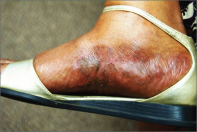 Illustration of Treatment Of Itching On The Instep?