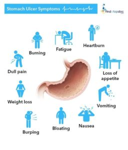 Illustration of Benefits Of Sucralfate In Peptic Ulcers?