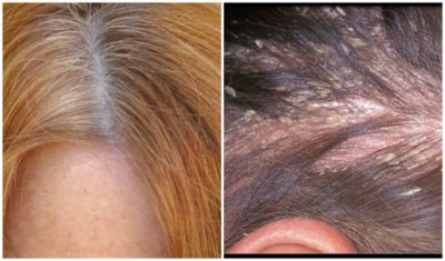 Illustration of Treatment Of Scalp That Often Itches?