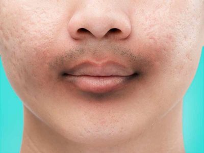 Illustration of The Skin Under The Nose To The Chin Is Darker Than The Color Of The Facial Skin?