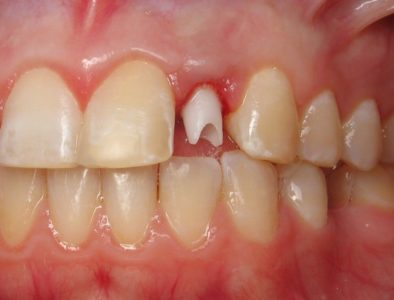 Illustration of Solution To Overcome Milk Teeth That Never Come Off?