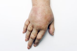 Illustration of Swelling In The Hand After Surgery Under The Shoulder?