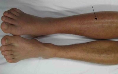 Illustration of The Right Calf Is Often Swollen After Falling From The Motor?