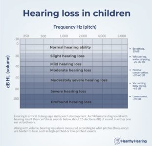 Illustration of Hearing Is Reduced In Children Aged 10 Years?