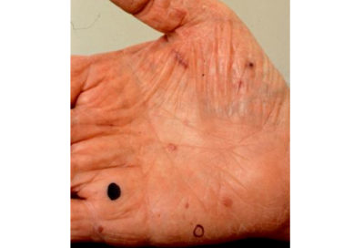 Illustration of Black Spots On The Fingers After Being Pierced By A Sharp Object?