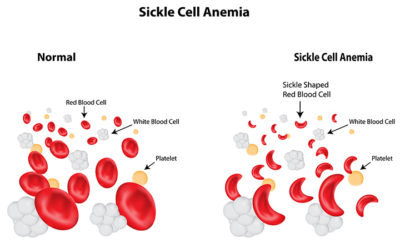 Illustration of White Blood Cell Deficiency In Children?