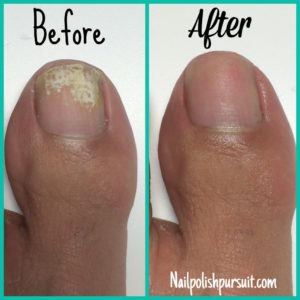 Illustration of Can You Remove Your Foot Nail Scars Before They Grow?