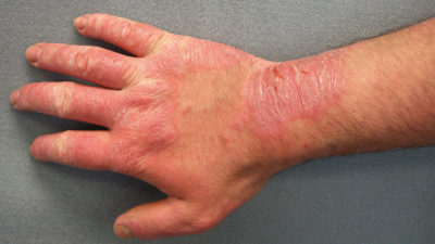 Illustration of A Red Rash Looks Like A Blister On The Hand?