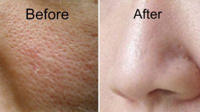 Illustration of Ways To Get Rid Of Prominent Pores On The Face?