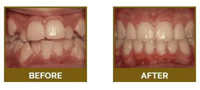 Illustration of Teeth Are Not Neat After The Use Of Braces?