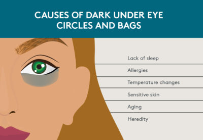 Illustration of What Is The Cause Of The Circle Of Eyeballs With Gray Ash?