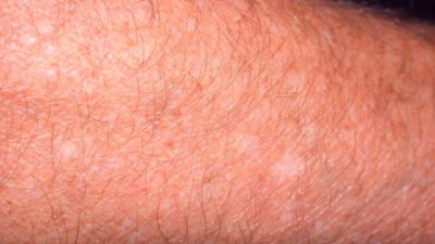 Illustration of Causes White Spots On The Skin?