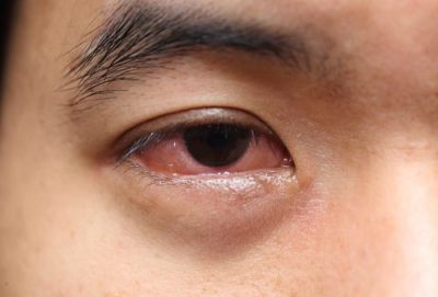 Illustration of The Cause Of Eye Dirt Such As Mucus Under The Eyelashes?