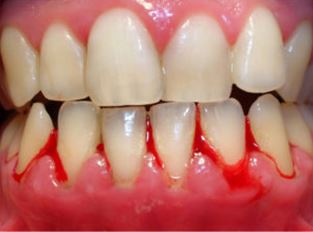 Illustration of How To Deal With Uneven Teeth And Bleeding Gums?