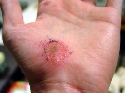 Illustration of How To Deal With Wounds On The Skin?