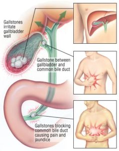 Illustration of Handling And Medication For Inflammation Of The Bile Duct?