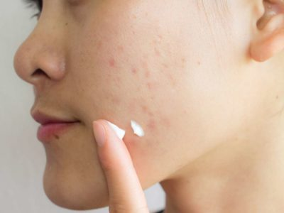 Illustration of How To Deal With Red Pimples And Acne Scars?