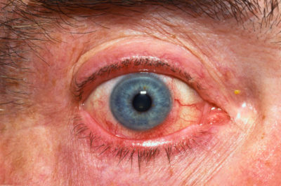 Illustration of The Eroded Inner Eyelid Appears Red And Feels Painful?